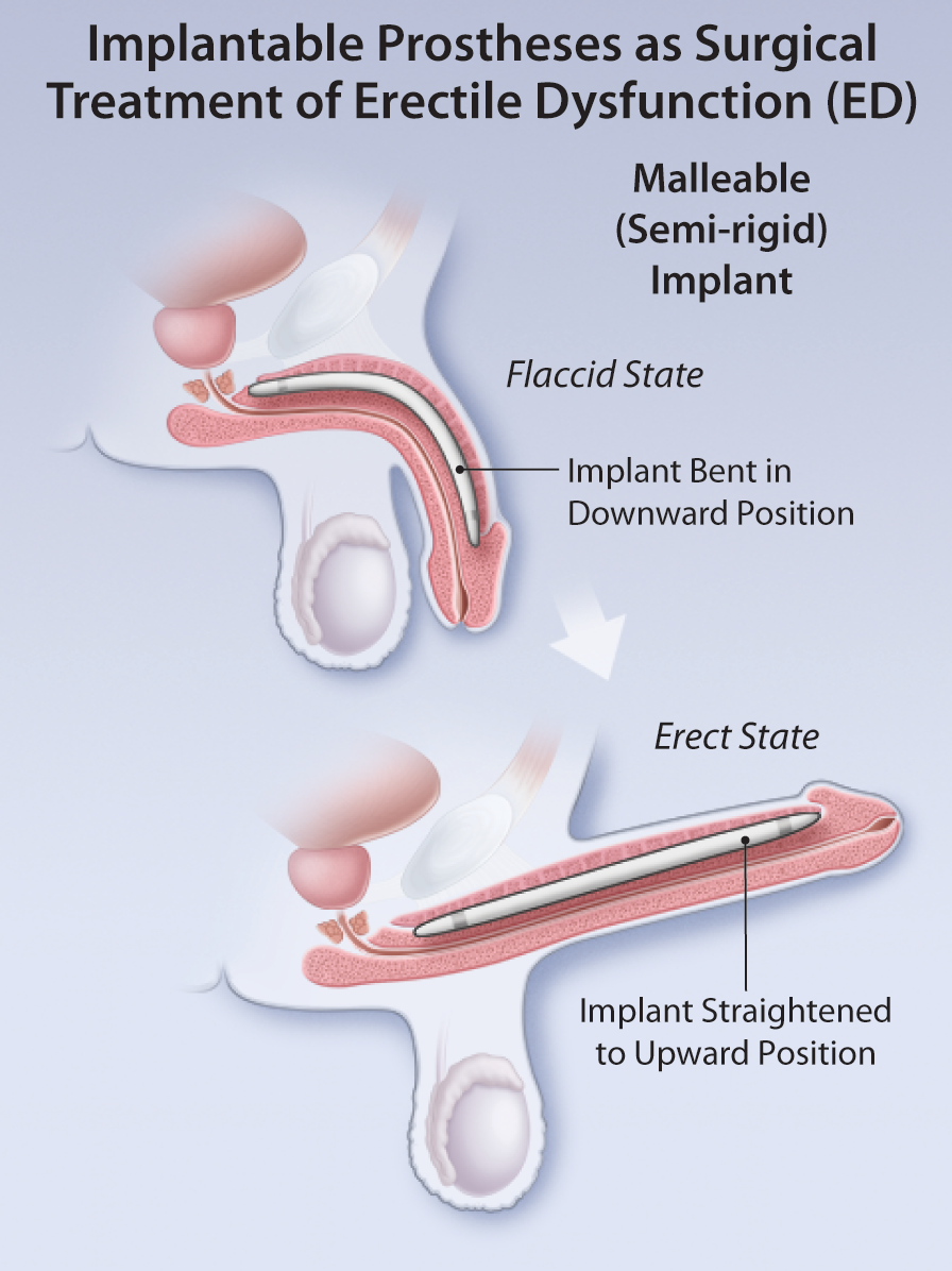 Surgery for penis erectile dysfunction