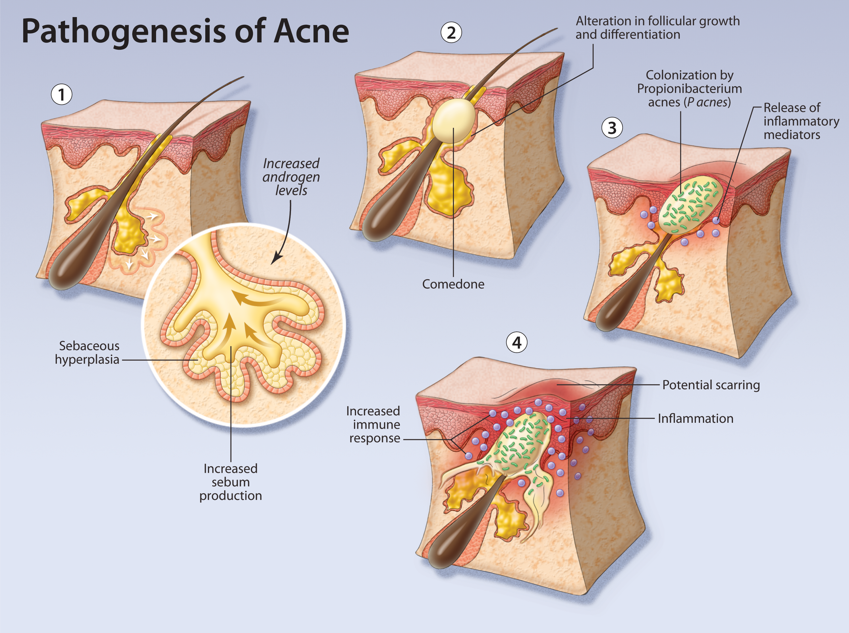 Clearing Up Acne Treatment For The Primary Care Physician